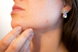 acne-1606765_1920_800_533